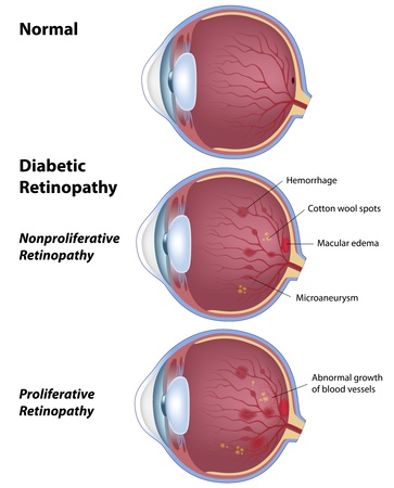 diabetic retinopathy, eye disease due to diabetes