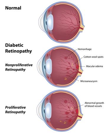 diabetic retinopathy, eye disease due to diabetes